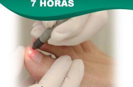 Laser Pedicure